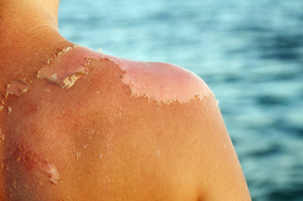 Уход за кожей после загара